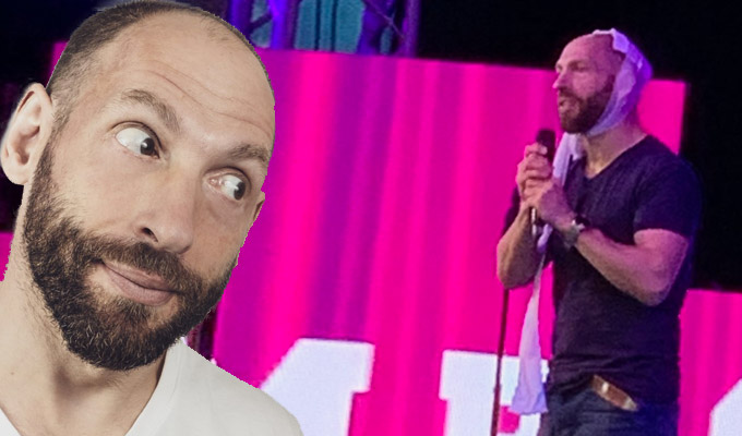 Bet that Bloomin' hurt | See the moment comic Adam Bloom split his head open on stage