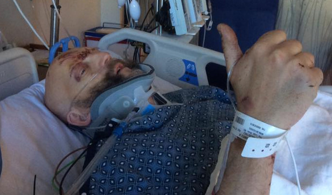 Jim Tavare out of intensive care | Comic slowly on the mend after horrific crash