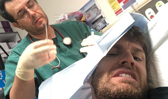 Joel Dommett injured on I'm A Celebrity... | Comic needs stitches after a being hit on the head